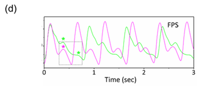 Figure 1d: Epidermal pulse signals before (green) and after (magenta) exercise of a human subject